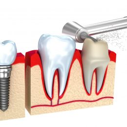 Emergency dental crown: what to expect