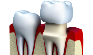dental crown illustration